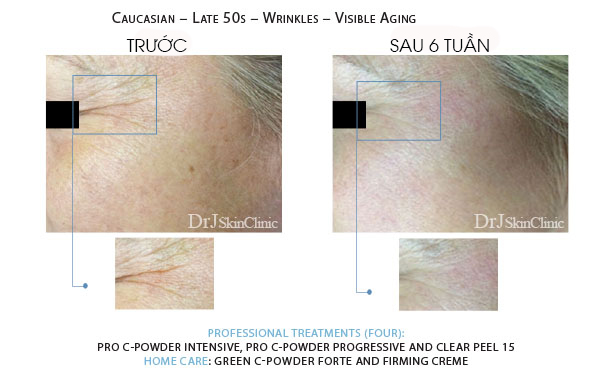 Huyết thanh vitamin C DrJ Skinclinic Green C-Powder Forte Kit 6