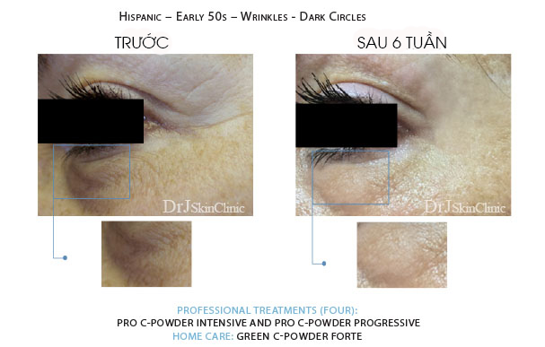 Huyết thanh vitamin C DrJ Skinclinic Green C-Powder Forte Kit 7