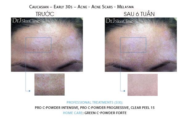 Huyết thanh vitamin C DrJ Skinclinic Green C-Powder Forte Kit 8