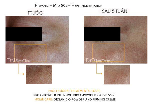 Huyết thanh vitamin C hữu cơ DrJ Skinclinic Organic C-Powder Kit 8