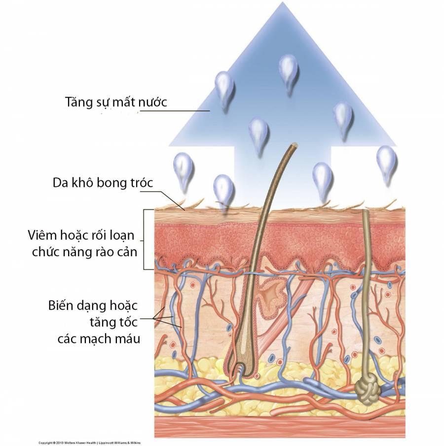 Hàng rào bảo vệ da, lớp lipid và axit của da 2