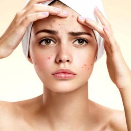 Vi khuẩn gây mụn P.acnes là gì và nó gây mụn như thế nào?